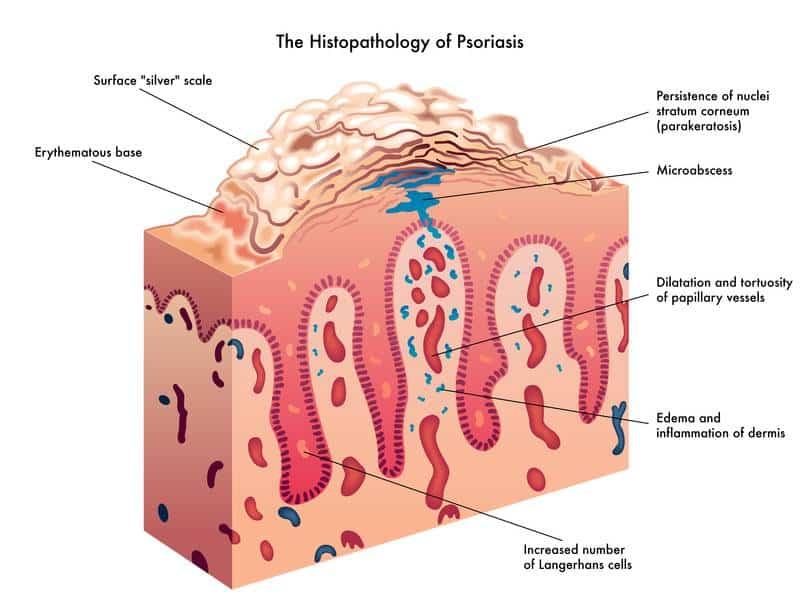 histopatologia da psoriase