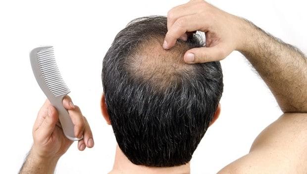 tratamentos para calvicie