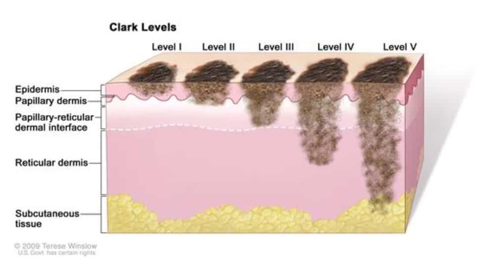 classificacao-clark-de-melanoma