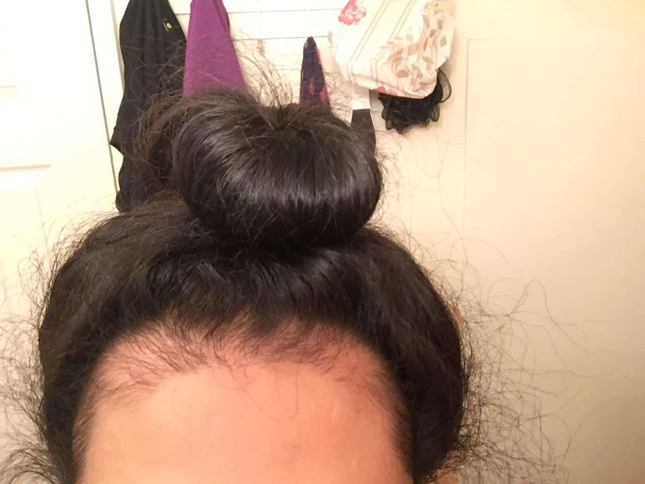alopecia por tracao dermatologia sao paulo