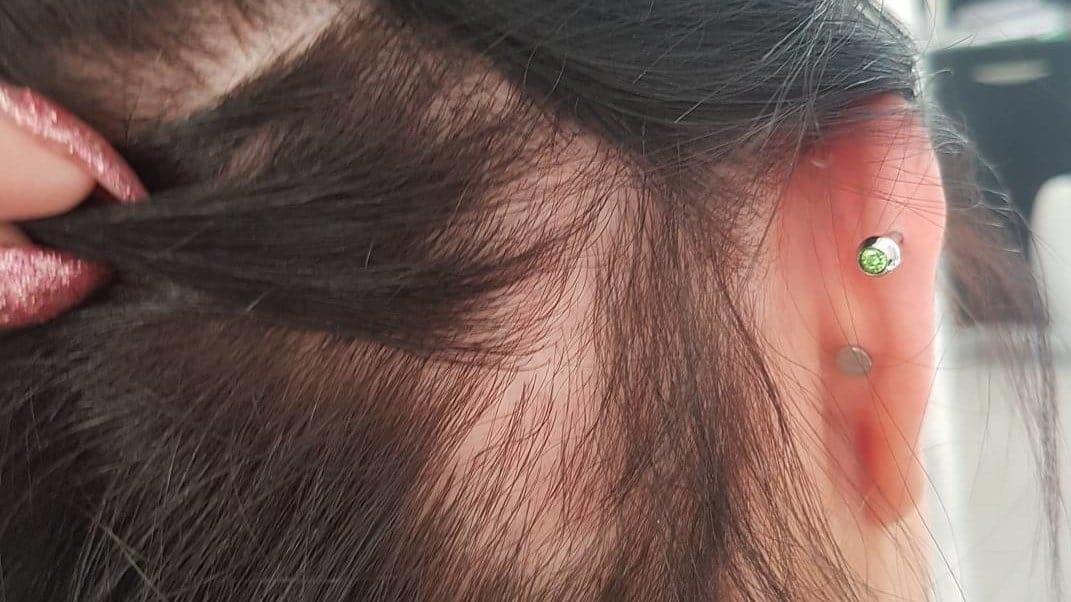 alopecia por tracao dermatologia